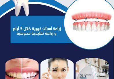 عيادة الدكتور رائد السلايمة للأسنان...